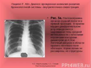 Рис. 5а. Рентгенограмма органов грудной полости в прямой проекции. В правом кард