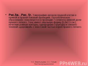 Рис.5в. , Рис. 5г. Томография органов грудной клетки в прямой и правой боковой п