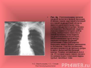 Рис. 6а. Рентгенограмма органов грудной полости в прямой проекции. В мягких ткан