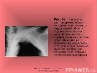 Рис. 6в. Прицельная рентгенограмма области верхушки левого легкого и надключично