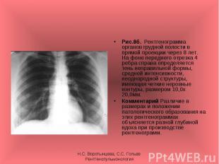 Рис.8б. Рентгенограмма органов грудной полости в прямой проекции через 8 лет. На