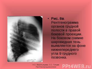Рис. 8в. Рентгенограмма органов грудной полости в правой боковой проекции. На бо