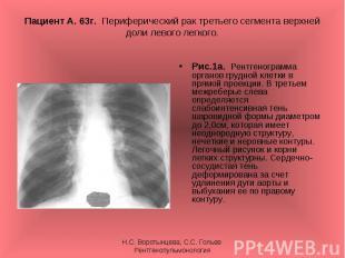Рис.1а. Рентгенограмма органов грудной клетки в прямой проекции. В третьем межре