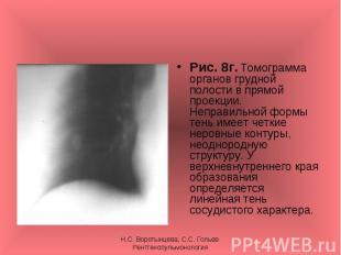 Рис. 8г. Томограмма органов грудной полости в прямой проекции. Неправильной форм