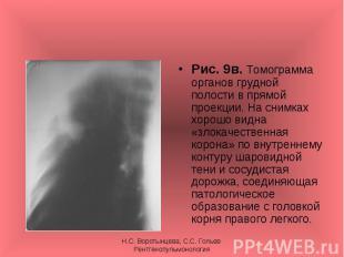 Рис. 9в. Томограмма органов грудной полости в прямой проекции. На снимках хорошо