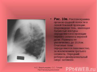 Рис. 10в. Рентгенограмма органов грудной полости в левой боковой проекции. Шаров
