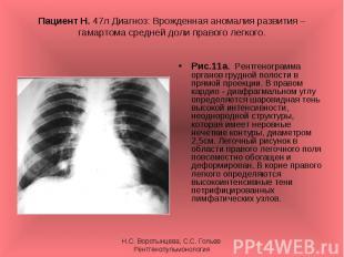 Рис.11а. Рентгенограмма органов грудной полости в прямой проекции. В правом кард
