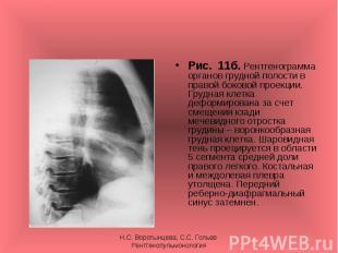 Рис. 11б. Рентгенограмма органов грудной полости в правой боковой проекции. Груд