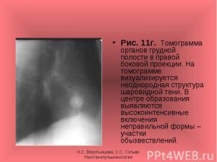 Рис. 11г. Томограмма органов грудной полости в правой боковой проекции. На томог