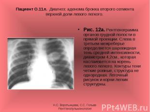 Рис. 12а. Рентгенограмма органов грудной полости в прямой проекции. Слева в трет