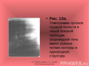 Рис. 12в. Томограмма органов грудной полости в левой боковой проекции. Шаровидна