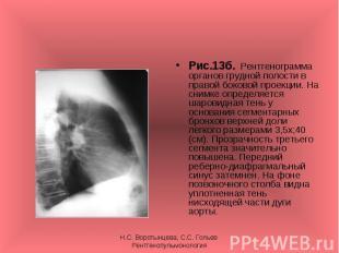 Рис.13б. Рентгенограмма органов грудной полости в правой боковой проекции. На сн