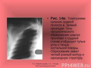 Рис. 14в. Томограмма органов грудной полости в прямой проекции. Тень патологичес