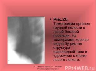Рис.2б. Томограмма органов грудной полости в левой боковой проекции. На томограм