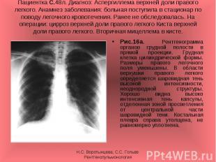 Рис.16а. Рентгенограмма органов грудной полости в прямой проекции. Грудная клетк
