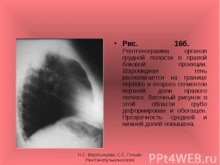Рис. 16б. Рентгенограмма органов грудной полости в правой боковой проекции. Шаро