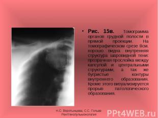 Рис. 15в. Томограмма органов грудной полости в прямой проекции. На томографическ