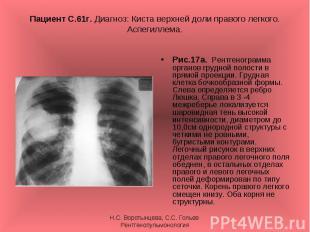 Рис.17а. Рентгенограмма органов грудной полости в прямой проекции. Грудная клетк