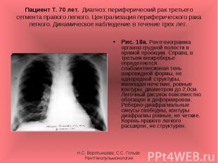 Рис. 18а. Рентгенограмма органов грудной полости в прямой проекции. Справа, в тр
