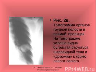 Рис. 2в. Томограмма органов грудной полости в прямой проекции. На томограмме хор