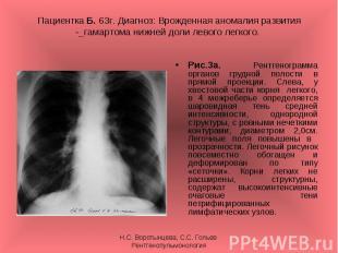 Рис.3а. Рентгенограмма органов грудной полости в прямой проекции. Слева, у хвост