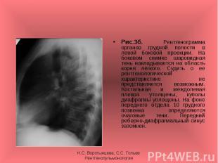 Рис.3б. Рентгенограмма органов грудной полости в левой боковой проекции. На боко