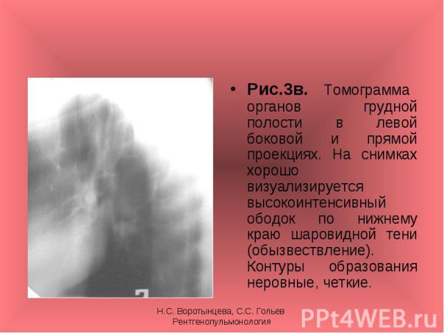 Рис.3в. Томограмма органов грудной полости в левой боковой и прямой проекциях. На снимках хорошо визуализируется высокоинтенсивный ободок по нижнему краю шаровидной тени (обызвествление). Контуры образования неровные, четкие. Рис.3в. Томограмма орга…