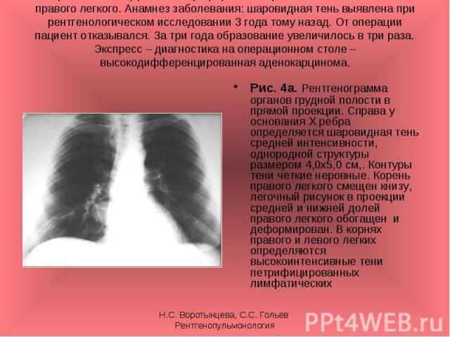 Рис. 4а. Рентгенограмма органов грудной полости в прямой проекции. Справа у основания Х ребра определяется шаровидная тень средней интенсивности, однородной структуры размером 4,0х5,0 см,. Контуры тени четкие неровные. Корень правого легкого смещен …