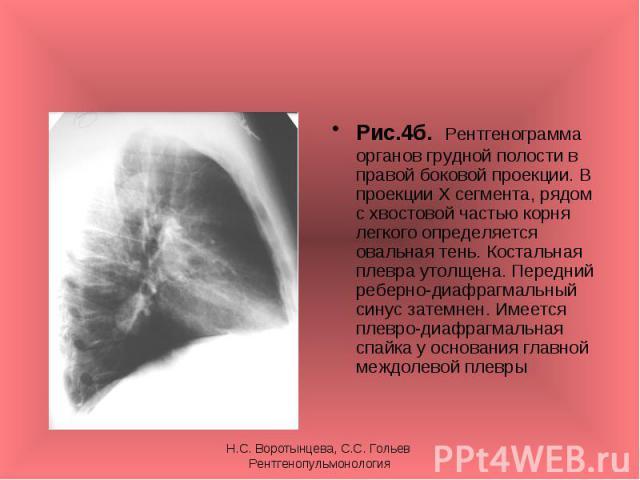 Рис.4б. Рентгенограмма органов грудной полости в правой боковой проекции. В проекции Х сегмента, рядом с хвостовой частью корня легкого определяется овальная тень. Костальная плевра утолщена. Передний реберно-диафрагмальный синус затемнен. Имеется п…