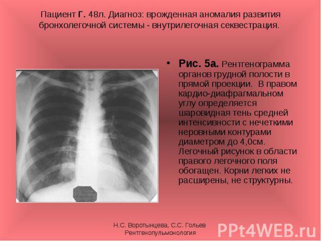 Рис. 5а. Рентгенограмма органов грудной полости в прямой проекции. В правом кардио-диафрагмальном углу определяется шаровидная тень средней интенсивности с нечеткими неровными контурами диаметром до 4,0см. Легочный рисунок в области правого легочног…