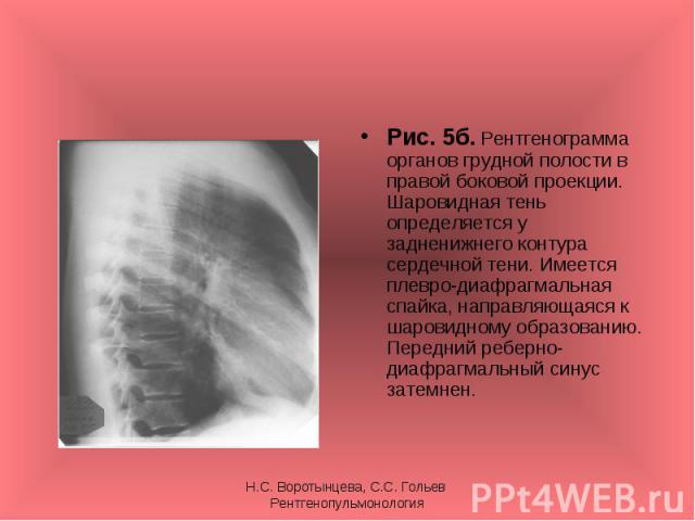 Рис. 5б. Рентгенограмма органов грудной полости в правой боковой проекции. Шаровидная тень определяется у задненижнего контура сердечной тени. Имеется плевро-диафрагмальная спайка, направляющаяся к шаровидному образованию. Передний реберно-диафрагма…