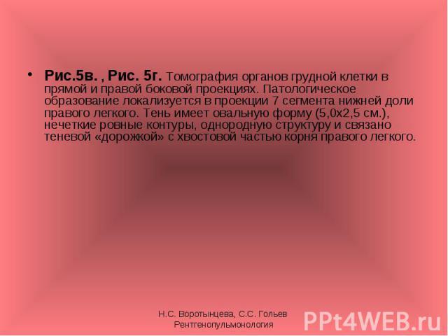 Рис.5в. , Рис. 5г. Томография органов грудной клетки в прямой и правой боковой проекциях. Патологическое образование локализуется в проекции 7 сегмента нижней доли правого легкого. Тень имеет овальную форму (5,0х2,5 см.), нечеткие ровные контуры, од…