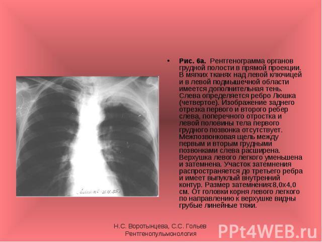 Рис. 6а. Рентгенограмма органов грудной полости в прямой проекции. В мягких тканях над левой ключицей и в левой подмышечной области имеется дополнительная тень. Слева определяется ребро Люшка (четвертое). Изображение заднего отрезка первого и второг…