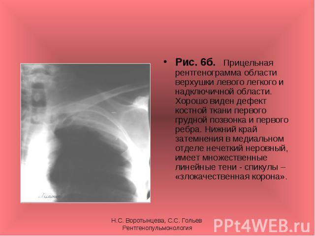 Рис. 6б. Прицельная рентгенограмма области верхушки левого легкого и надключичной области. Хорошо виден дефект костной ткани первого грудной позвонка и первого ребра. Нижний край затемнения в медиальном отделе нечеткий неровный, имеет множественные …