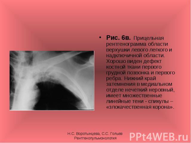 Рис. 6в. Прицельная рентгенограмма области верхушки левого легкого и надключичной области. Хорошо виден дефект костной ткани первого грудной позвонка и первого ребра. Нижний край затемнения в медиальном отделе нечеткий неровный, имеет множественные …