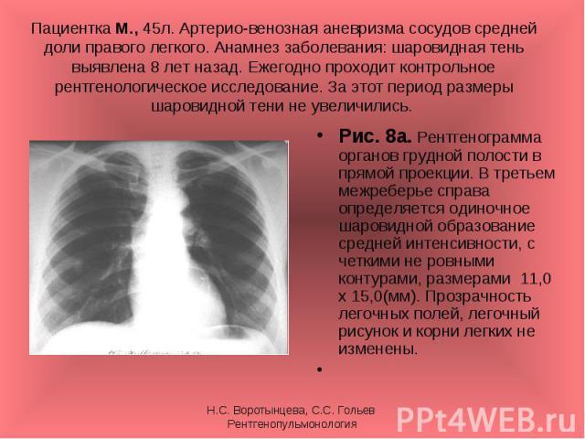 Рис. 8а. Рентгенограмма органов грудной полости в прямой проекции. В третьем межреберье справа определяется одиночное шаровидной образование средней интенсивности, с четкими не ровными контурами, размерами 11,0 х 15,0(мм). Прозрачность легочных поле…