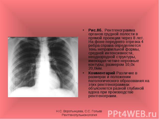 Рис.8б. Рентгенограмма органов грудной полости в прямой проекции через 8 лет. На фоне переднего отрезка 4 ребра справа определяется тень неправильной формы, средней интенсивности, неоднородной структуры, имеющая четкие неровные контуры, размером 10,…