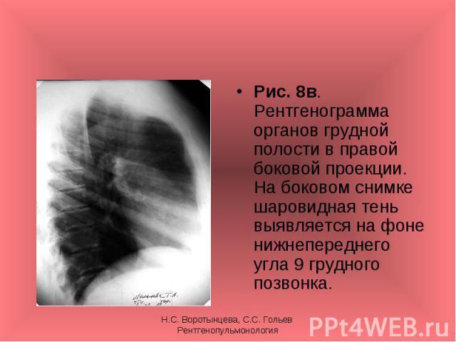 Рис. 8в. Рентгенограмма органов грудной полости в правой боковой проекции. На боковом снимке шаровидная тень выявляется на фоне нижнепереднего угла 9 грудного позвонка. Рис. 8в. Рентгенограмма органов грудной полости в правой боковой проекции. На бо…