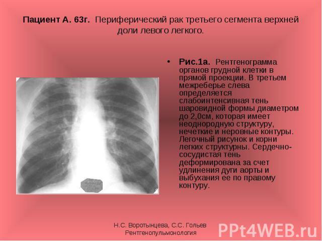 Рис.1а. Рентгенограмма органов грудной клетки в прямой проекции. В третьем межреберье слева определяется слабоинтенсивная тень шаровидной формы диаметром до 2,0см, которая имеет неоднородную структуру, нечеткие и неровные контуры. Легочный рисунок и…
