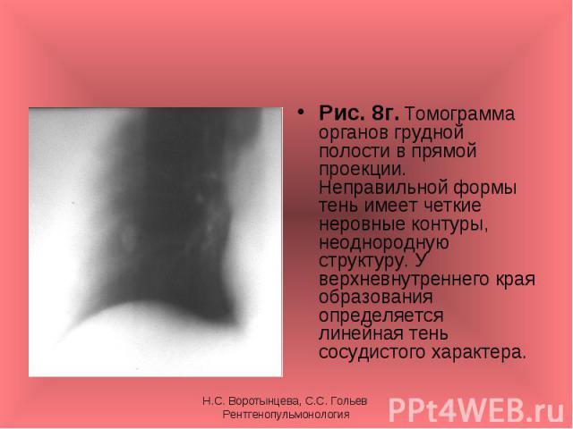 Рис. 8г. Томограмма органов грудной полости в прямой проекции. Неправильной формы тень имеет четкие неровные контуры, неоднородную структуру. У верхневнутреннего края образования определяется линейная тень сосудистого характера. Рис. 8г. Томограмма …