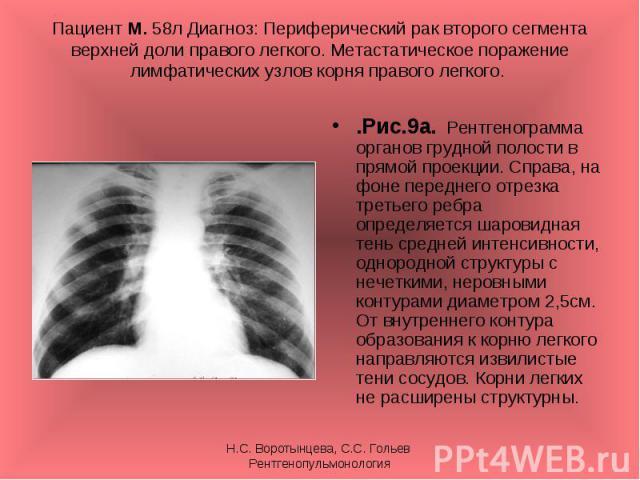 .Рис.9а. Рентгенограмма органов грудной полости в прямой проекции. Справа, на фоне переднего отрезка третьего ребра определяется шаровидная тень средней интенсивности, однородной структуры с нечеткими, неровными контурами диаметром 2,5см. От внутрен…
