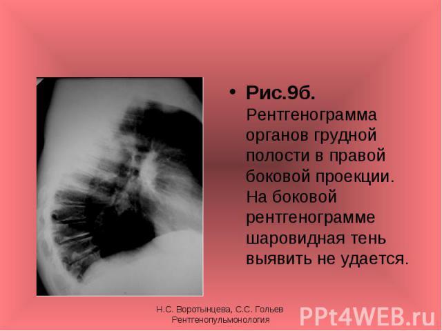 Рис.9б. Рентгенограмма органов грудной полости в правой боковой проекции. На боковой рентгенограмме шаровидная тень выявить не удается. Рис.9б. Рентгенограмма органов грудной полости в правой боковой проекции. На боковой рентгенограмме шаровидная те…