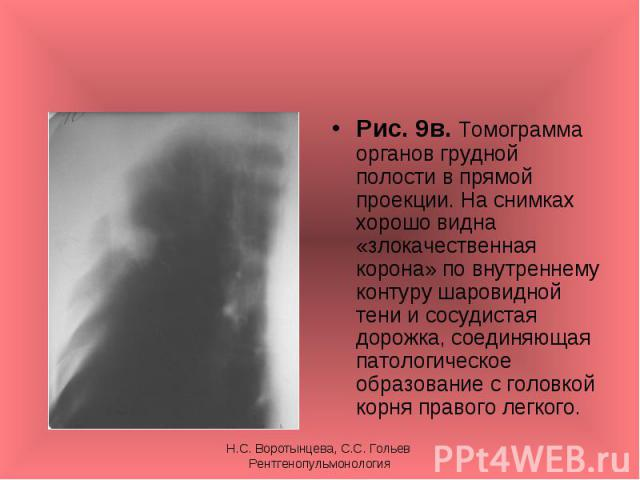 Рис. 9в. Томограмма органов грудной полости в прямой проекции. На снимках хорошо видна «злокачественная корона» по внутреннему контуру шаровидной тени и сосудистая дорожка, соединяющая патологическое образование с головкой корня правого легкого. Рис…