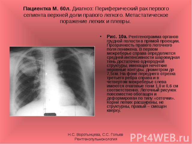 Рис. 10а. Рентгенограмма органов грудной полости в прямой проекции. Прозрачность правого легочного поля понижена. В первом межреберье справа определяется средней интенсивности шаровидная тень достаточно однородной структуры, имеющая нечеткие неровны…