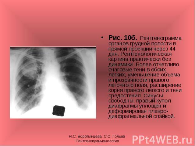 Рис. 10б. Рентгенограмма органов грудной полости в прямой проекции через 44 дня. Рентгенологическая картина практически без динамики. Более отчетливо очаговые тени в обоих легких, уменьшение объема и прозрачности правого легочного поля, расширение к…