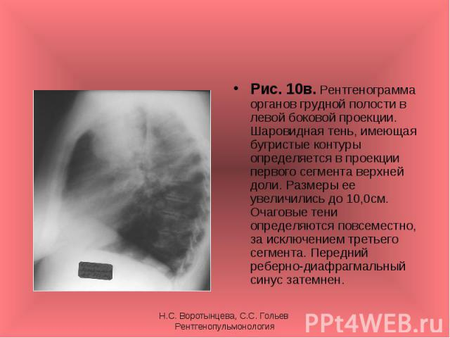 Рис. 10в. Рентгенограмма органов грудной полости в левой боковой проекции. Шаровидная тень, имеющая бугристые контуры определяется в проекции первого сегмента верхней доли. Размеры ее увеличились до 10,0см. Очаговые тени определяются повсеместно, за…