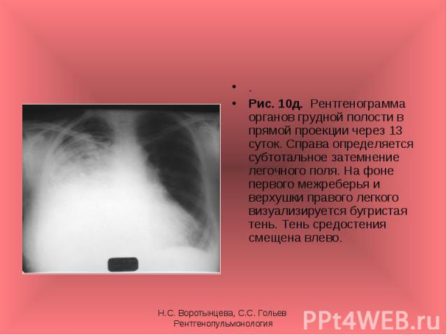. . Рис. 10д. Рентгенограмма органов грудной полости в прямой проекции через 13 суток. Справа определяется субтотальное затемнение легочного поля. На фоне первого межреберья и верхушки правого легкого визуализируется бугристая тень. Тень средостения…