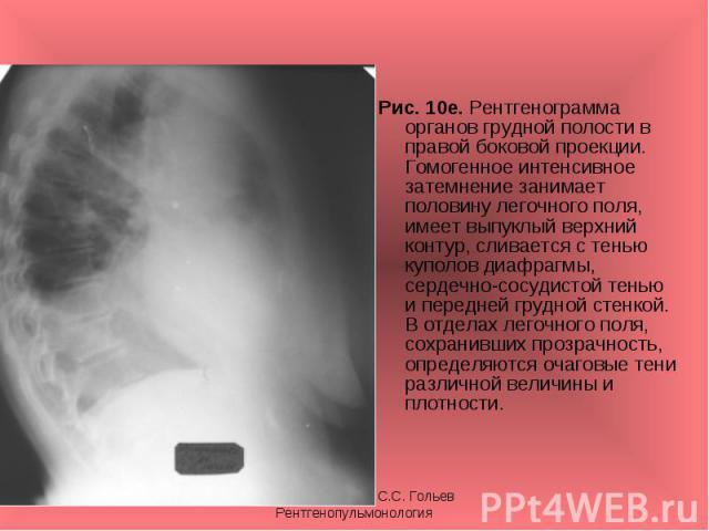 Рис. 10е. Рентгенограмма органов грудной полости в правой боковой проекции. Гомогенное интенсивное затемнение занимает половину легочного поля, имеет выпуклый верхний контур, сливается с тенью куполов диафрагмы, сердечно-сосудистой тенью и передней …