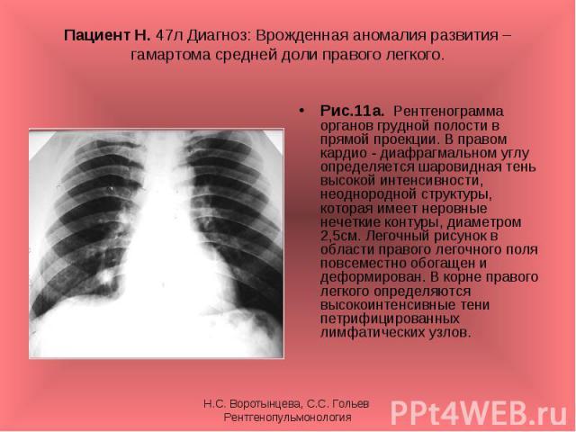 Рис.11а. Рентгенограмма органов грудной полости в прямой проекции. В правом кардио - диафрагмальном углу определяется шаровидная тень высокой интенсивности, неоднородной структуры, которая имеет неровные нечеткие контуры, диаметром 2,5см. Легочный р…