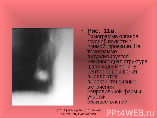Рис. 11в. Томограмма органов грудной полости в прямой проекции. На томограмме визуализируется неоднородная структура шаровидной тени. В центре образования выявляются высокоинтенсивные включения неправильной формы – участки обызвествлений. Рис. 11в. …